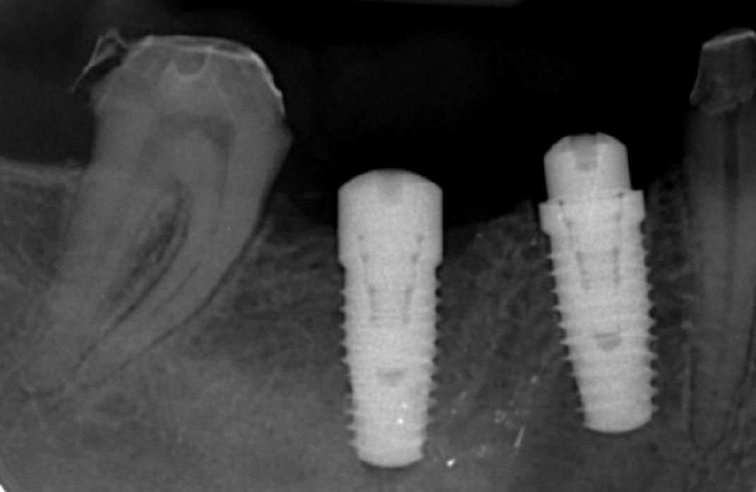 type-of-dental-implants