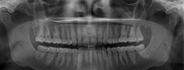 x-ray-teeth