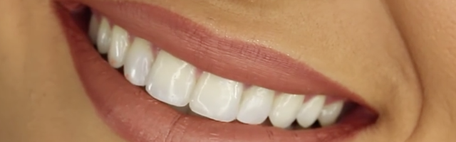 How do I know if my tooth needs replacing? How far gone is too far gone?
