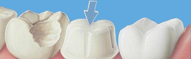 Metal Free Dental Crowns