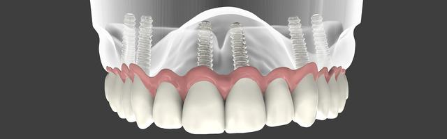 Denture Retention Implants