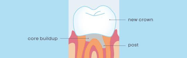 What is a Post and Core Tooth Replacement Method?