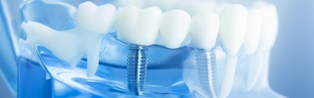 How long does a dental implant last, and what sort of guarantee do these dental implants come with?