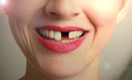 A single tooth gap can lead to more tooth loss!