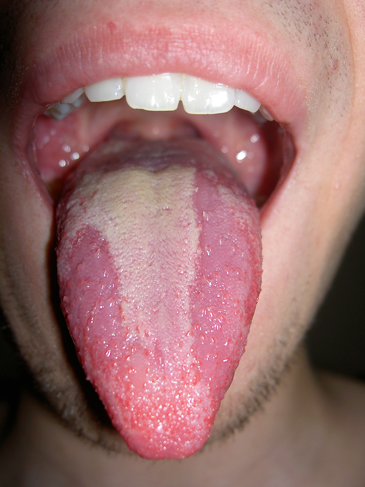 Ask Your Dentist 23 Fungal Infection Of The Tongue