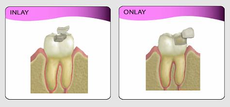 FAQ - Dental Inlay - Onlay | Tooth Implant London