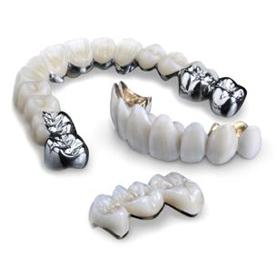 Metal Fused crowns | Tooth Implant London