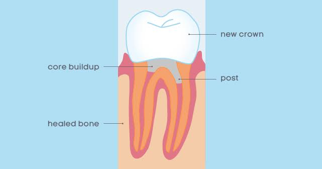 Post and core tooth replacement method