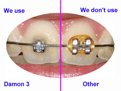What Is So Special About Damon Braces Tooth Implant London