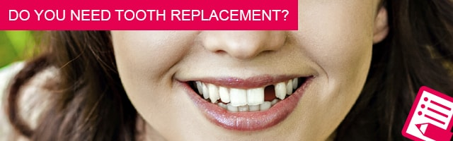 Do you need tooth replacement?